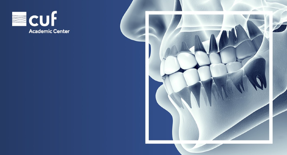 Curso de Fibrina Rica em Plaquetas para Médicos Dentistas