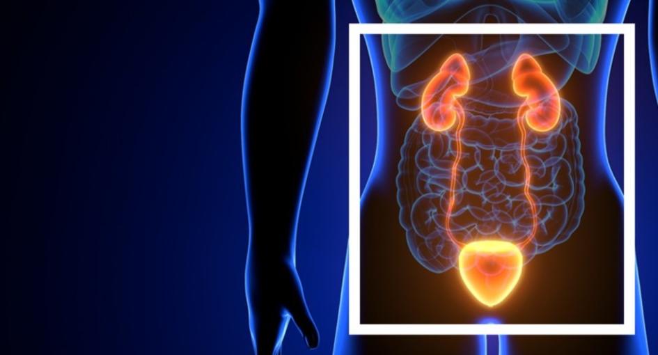 1ª Masterclass prostatectomia laparoscópica com preservação da uretra prostática