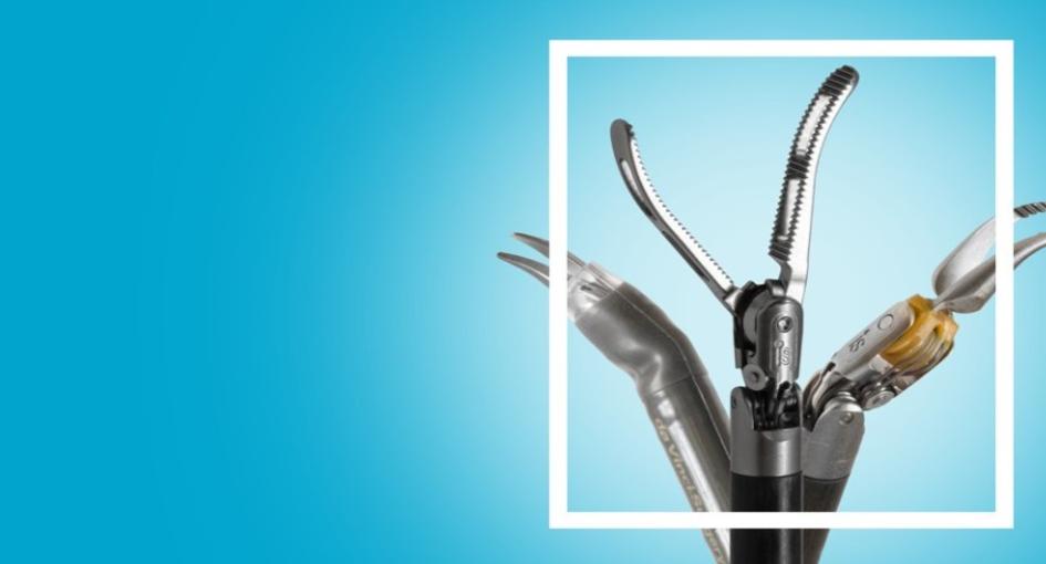 Robotic or laparoscopic simple prostatectomy with prostatic urethra preservation